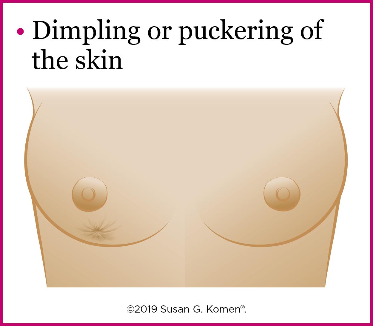 Warning Signs - Pucker