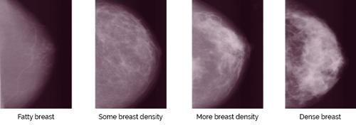 Breast Density on Mammogram